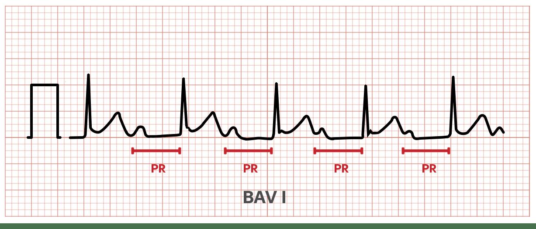 BAV1 - ECG