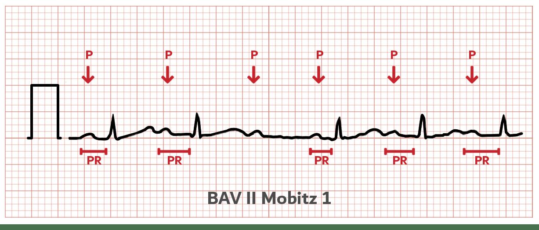 BAV2 - Mobitz 1 - ECG