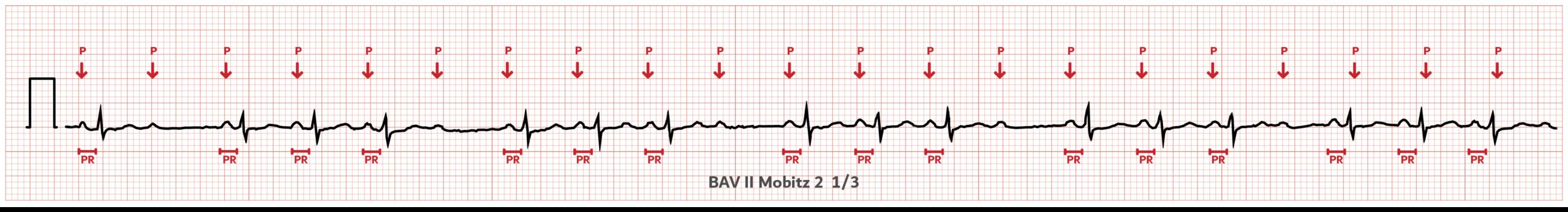 BAV2 - Mobitz 2 - ECG