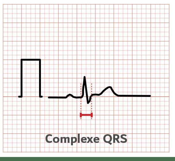 Complexe QRS - ECG