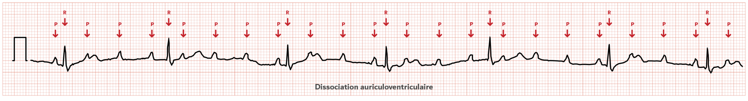 Dissociation auriculo-ventriculaire - ECG