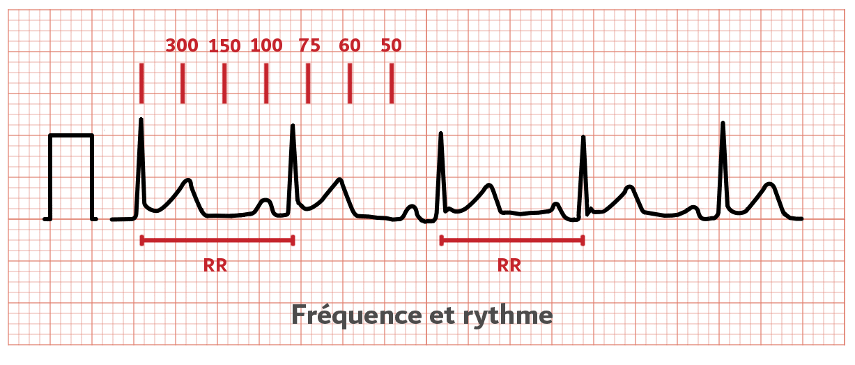 Frequence cardiaque - ECG