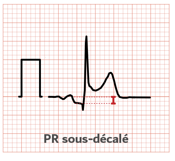 Intervalle PQ - Sous-decalage - ECG