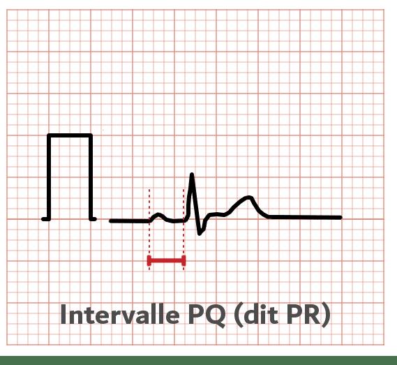 Intervalle PQ - ECG