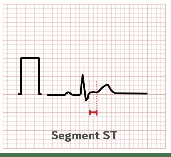 Intervalle ST - ECG