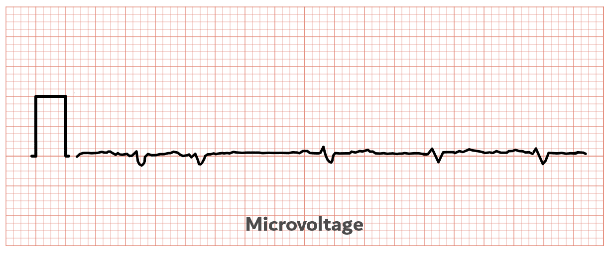 Microvoltage - ECG