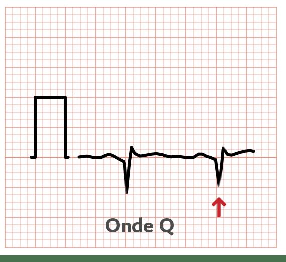 Onde Q - ECG