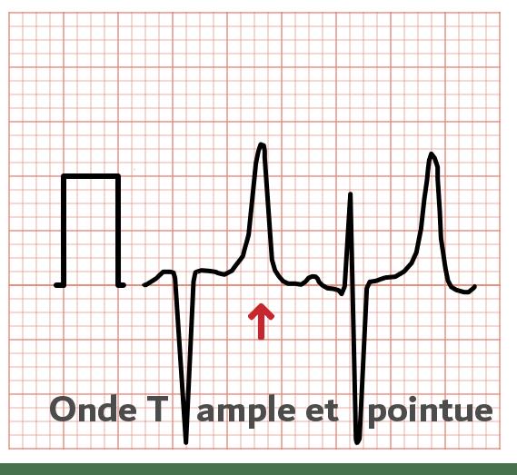 Onde T ample - ECG