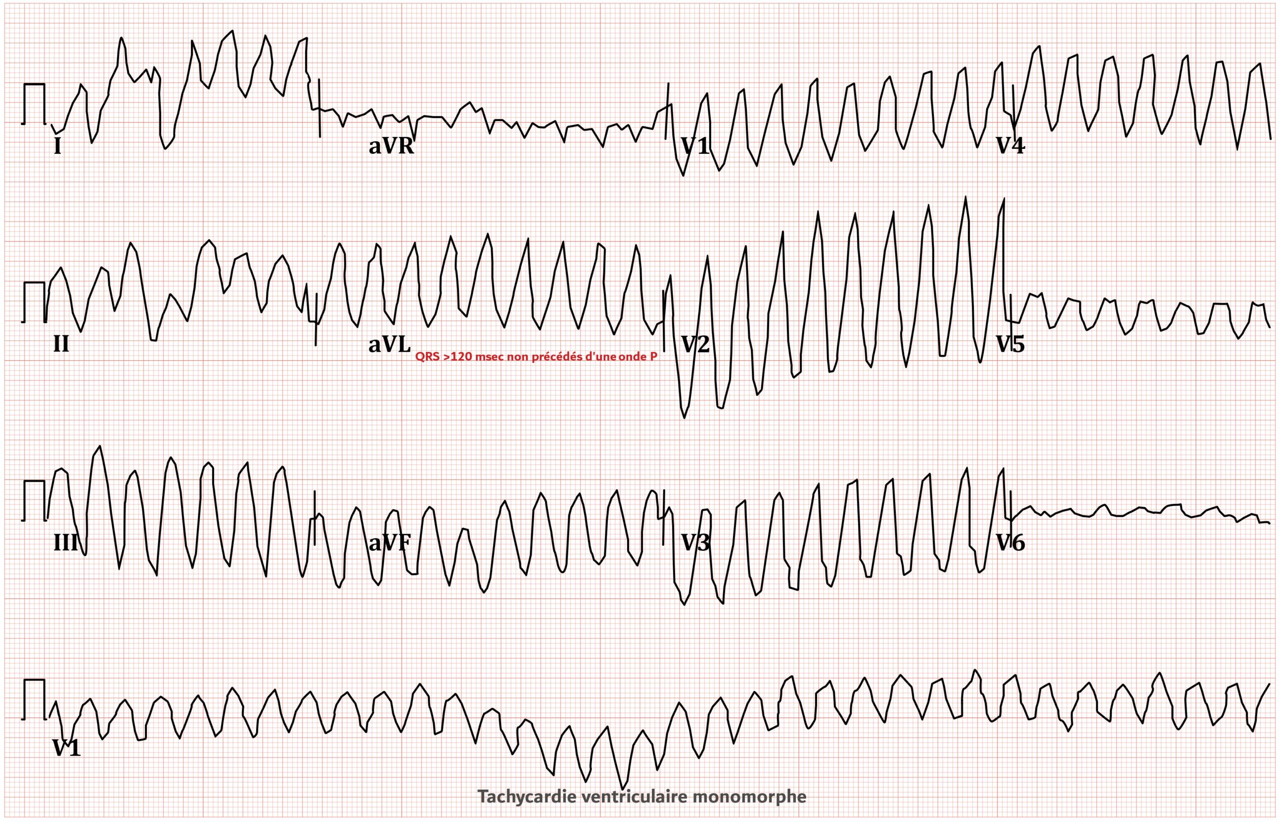 Tachycardie ventriculaire - ECG