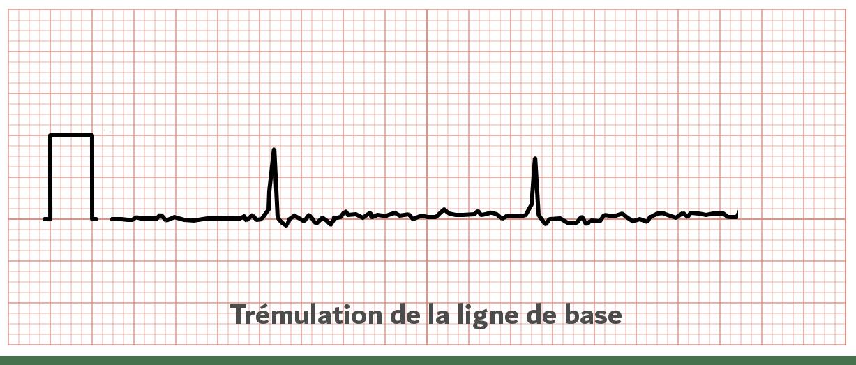 Tremulation ligne de base - ECG