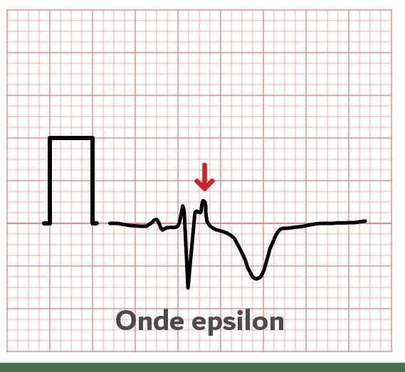 Onde Epsilon - ECG